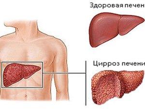 Поражение печени циррозом